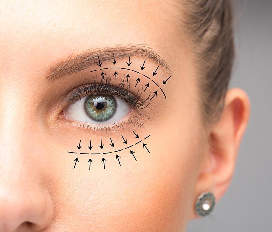 Closeup of female eye showing effects of oculoplastic